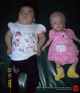 Nur with her sister Fitri, who also has hydrocephalus symptom