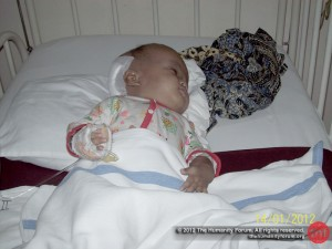 Mukti in the pediatric ward, right after the operation.